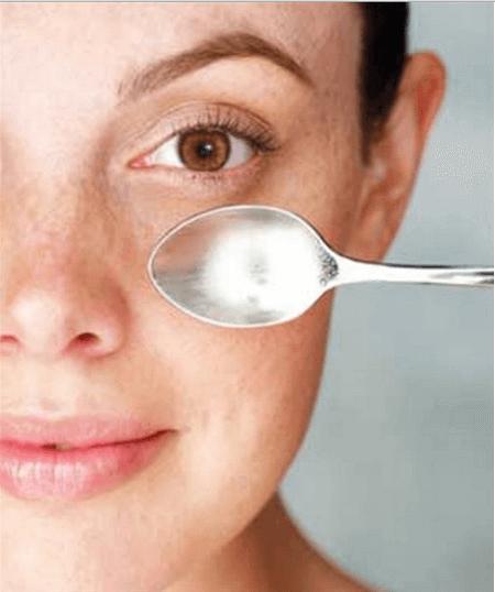 silmänaluset ja lusikka