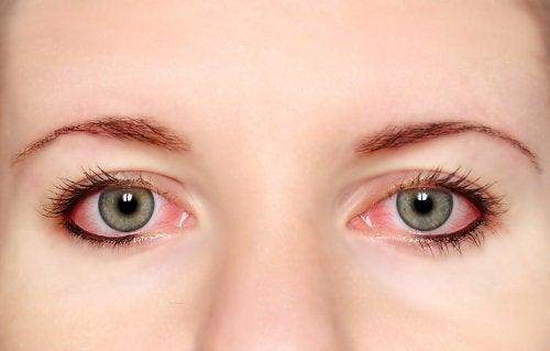 silmatulehdus korianterin hyöty