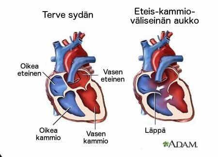 7 faktaa sydämen sivuäänistä