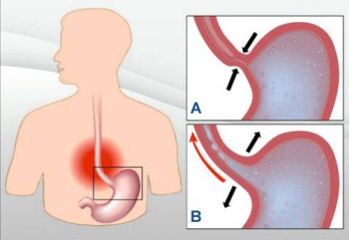 närästyksen anatomiaa