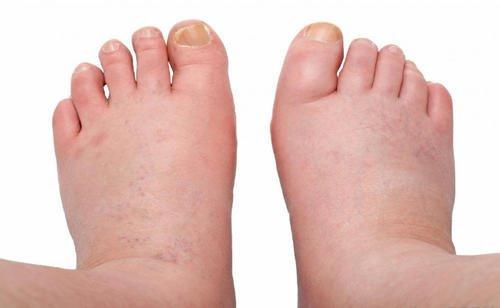 6 hoitokeinoa turvonneille jaloille