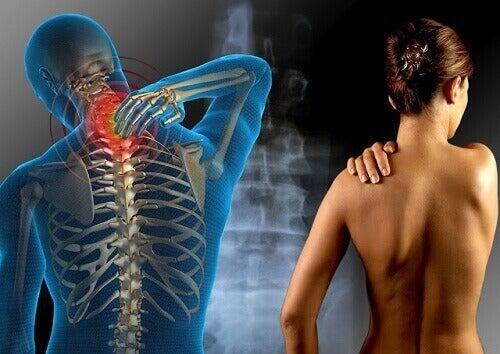 Hoida fibromyalgiaa näillä yrteillä