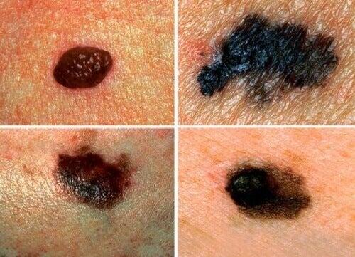 Ehkäise ihosyöpä ja tunnista sen oireet