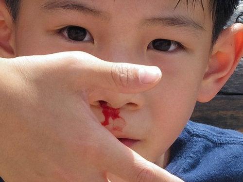 Pojan nenästä vuotaa verta