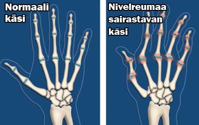 Reuma kädessä