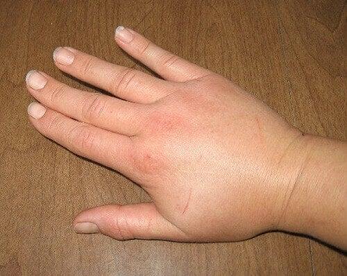 Turvonnut käsi