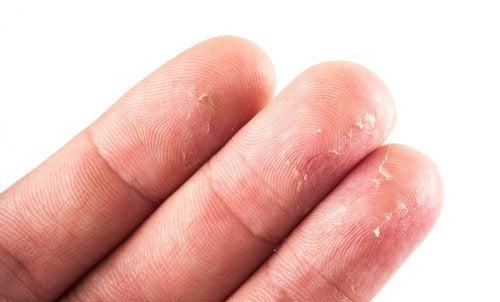 Ekseema sormissa