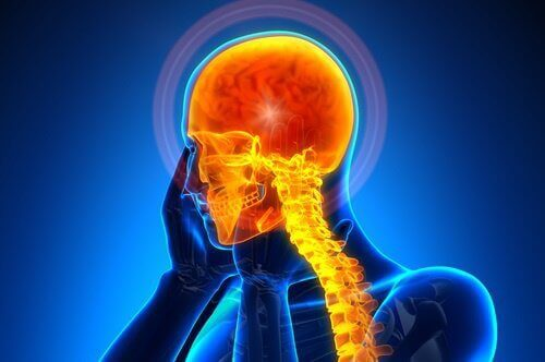 Päänsärky ja selkäranka