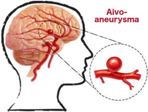 Aivoaneurysma