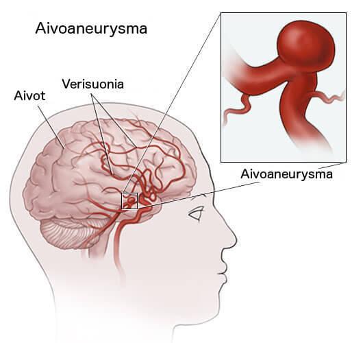 Aivoaneurysma aivoissa