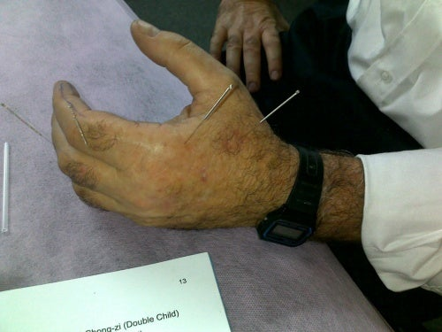 Käden akupunktio