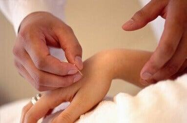 Akupunktio käteen