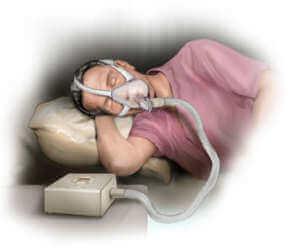 Mies nukkuu hengityslaitteen kanssa