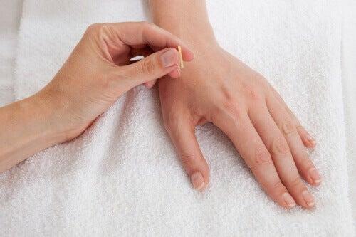 Iskiaskivun helpotusta akupunktiolla