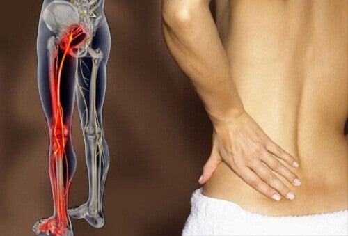 Iskias ja selkäsärky