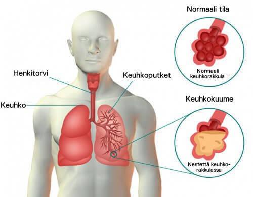 Keuhkokuume