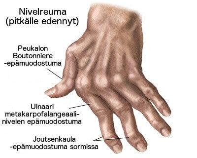 Nivelreuma käsissä