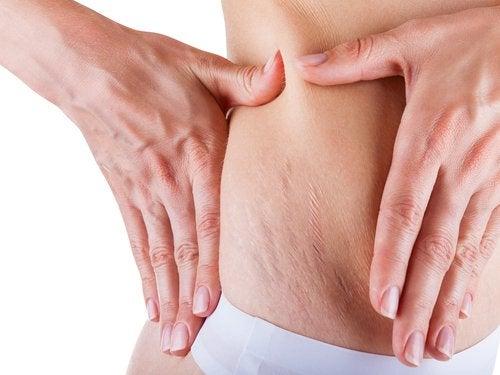 miten häivytät raskausarpia luonnollisin keinoin