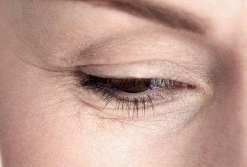 Vähäinen vedenjuonti vaikuttaa ihon ikääntymiseen.