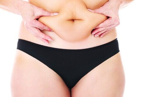 Nainen rutistaa vatsamakkaroita