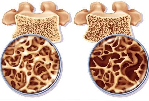 Osteoporoosi ja luiden tiheys