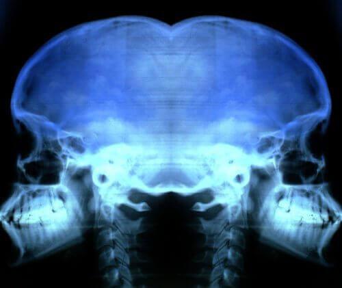 Röntgenkuvassa näkyy osteoporoosi