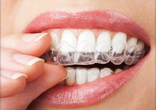 4 tapaa hoitaa bruksismi, eli hampaiden narskuttelu