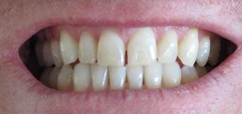 Hampaat ja bruksismi