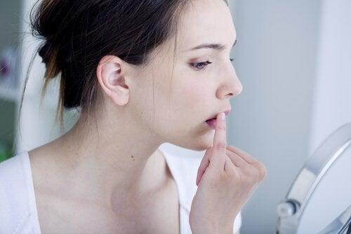 Nainen hoitaa huuliherpestä