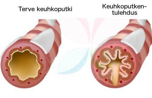 Terve ja tulehtunut keuhkoputki