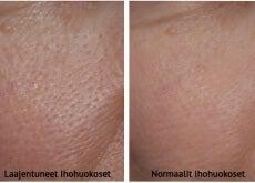 Tavalliset ja laajentuneet ihohuokoset