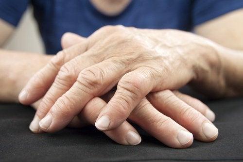 Suolistobakteerit ja nivelkipu - onko niillä yhteys
