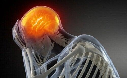 Luurangon päänsärky