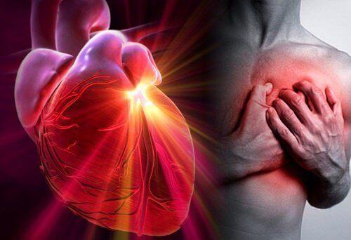 Näin vähennät sydänkohtauksen ja halvauksen riskiä