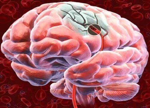 5 tapaa lisätä aivojen verenkiertoa