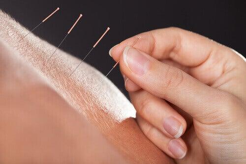 akupunktio lievittää vaihdevuosioireita
