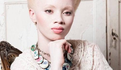 Albinismi: Malli Thando Hopan koskettava tarina