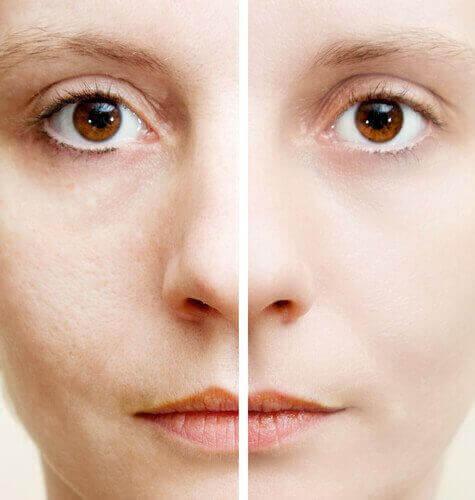 5 tuotetta ihon tummentumien poistoon
