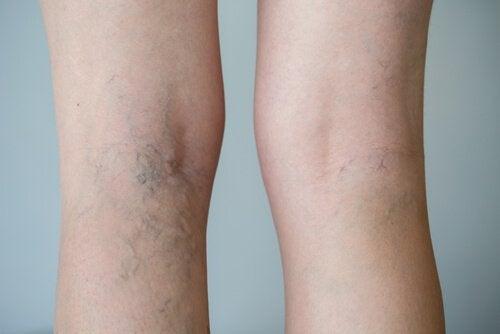 Naisen jaloissa suonikohjut