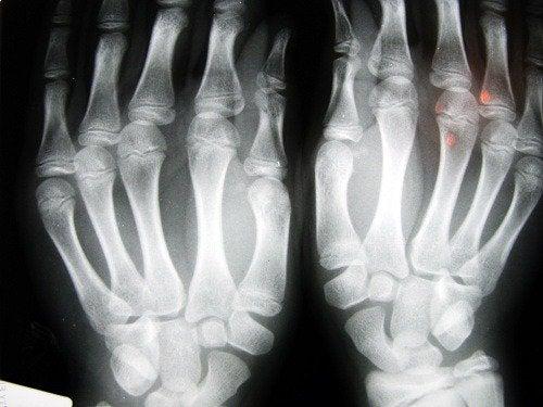 kädet kuvattuina röntgenissä
