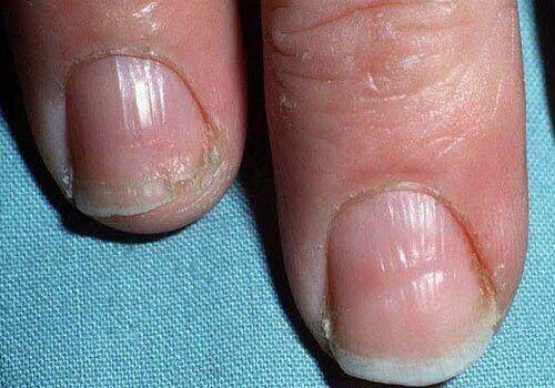 Kilpirauhasongelmat voivat näkyä jopa kynsien kunnossa.