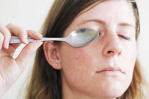 Lusikka silmällä auttaa laskemaan silmän turvotusta.