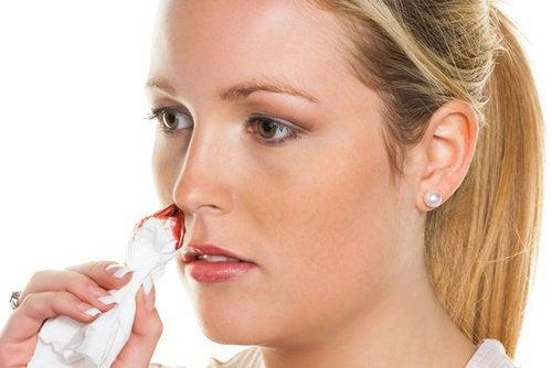 Luonnolliset hoitokeinot nenäverenvuotoihin