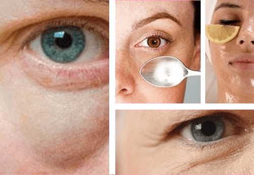 Helpot keinot silmäpussien häivyttämiseen