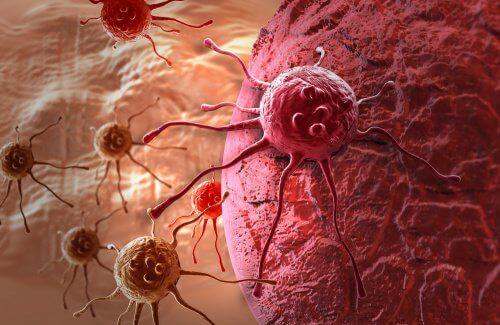 Vaihtoehtoinen syöpähoito kemoterapialle