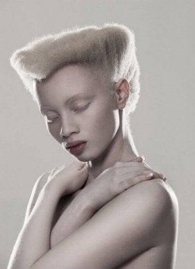 Thando Hopa, albiinomalli