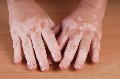 5 tapaa hoitaa vitiligo kotikonstein