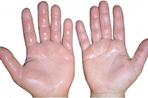 1-turvonneet kädet
