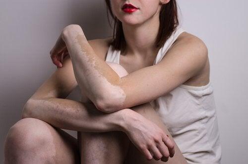 vitiligoa