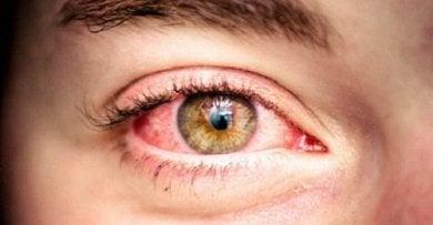 punoittava silmä